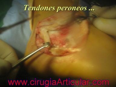 artrodesis subastragalina o fusion de articulaciones del pie