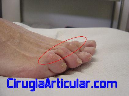 Dedo garra martillo for Operacion de pies