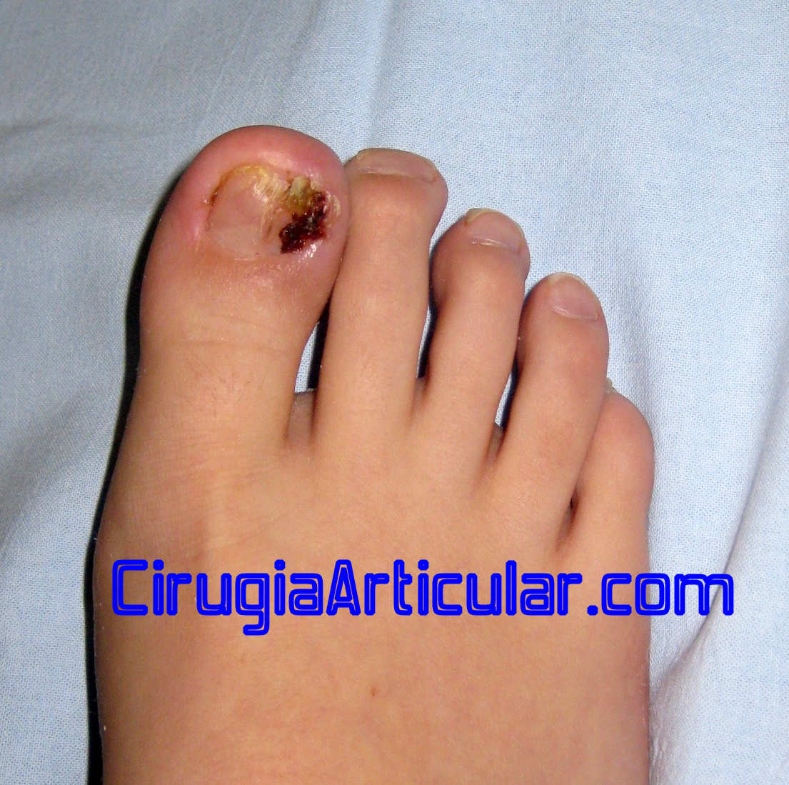Se hincha el pie del hongo