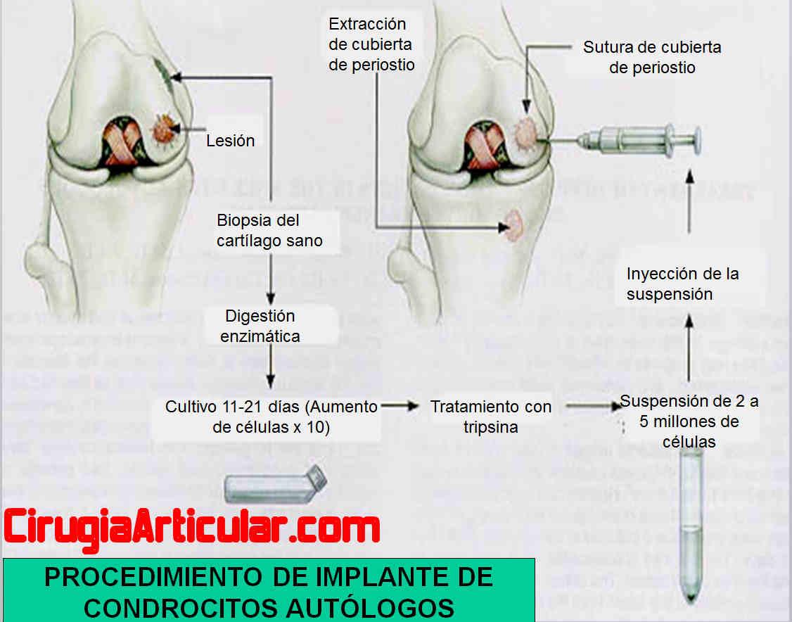 regeneracion_cartilago